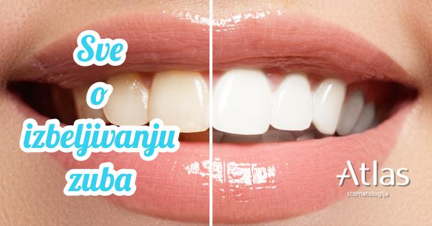 Izbeljivanje zuba nije rezervisano samo za filmske zvezde
